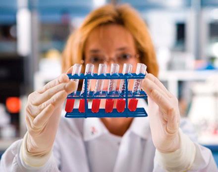 Причины и факторы снижения общего билирубина в крови