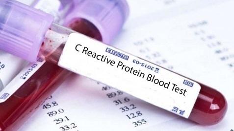 О чем скажет с-реактивный белок в анализе крови?