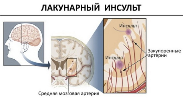 Что нужно знать об ишемическом инсульте?