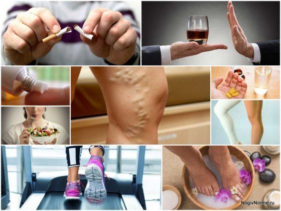 Методы профилактики хронического варкоза вен на ногах