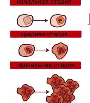 Симптомы, лечение и прогноз различных форм лейкемии