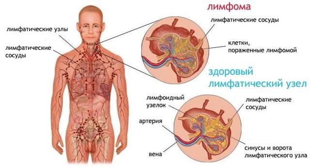 Симптомы лимфомы и методы ее лечения