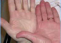 Отдельные аспекты клиники и диагностики постгеморрагической анемии