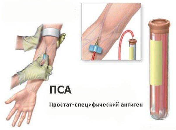 Анализ на ПСА – эффективный индикатор новообразований простаты