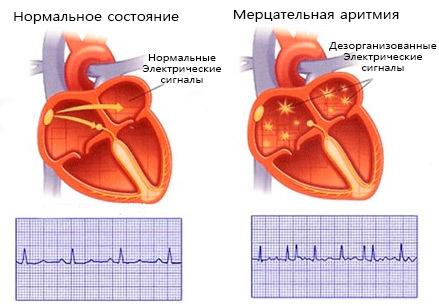 Особенности протекания мерцательной аритмии и ее лечения