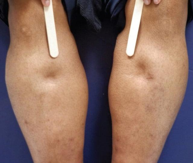Диагностика и лечение отечности ног при сердечной недостаточности