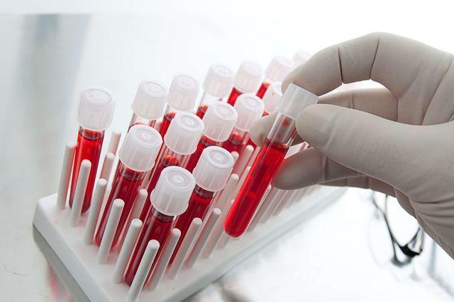 Виды антител и их функции в организме