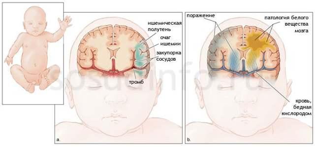Ишемия головного мозга симптомы у взрослых