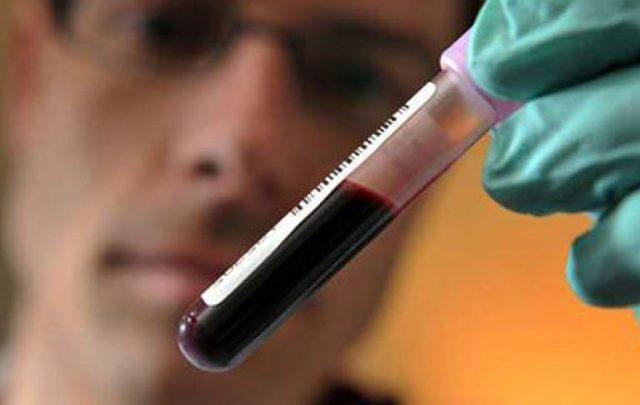 Причины повышения уровня СОЭ в крови