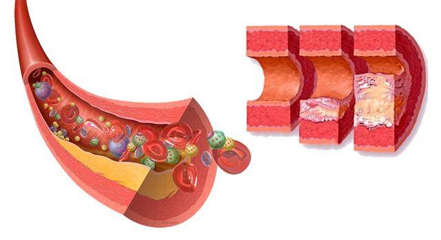 Показатели нормы холестерина для женщин старше 60 лет