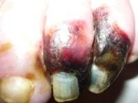 Запущенная ишемия может привести к гангрене или летальному исходу