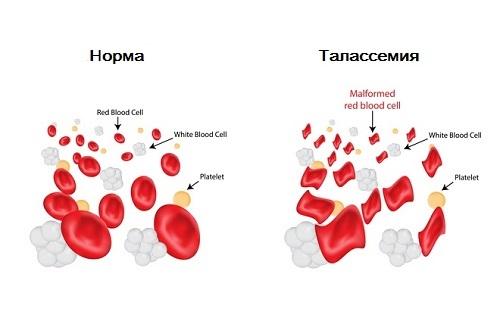 Симптомы и методы лечения талассемии
