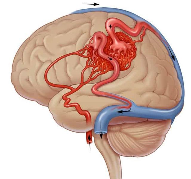 94d68bcc95f524d6ccf0b8a601a2993c - Malformation artério-veineuse des vaisseaux cérébraux