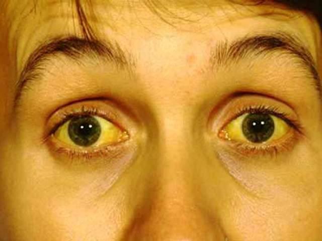 Понижение уровня билирубина лекарственными и народными средствами