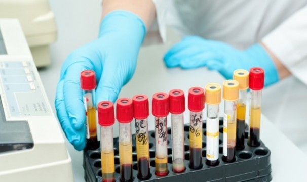 Основные правила обследования гормонального фона