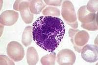 Причины и диагностика отклонений от нормы уровня базофилов в крови