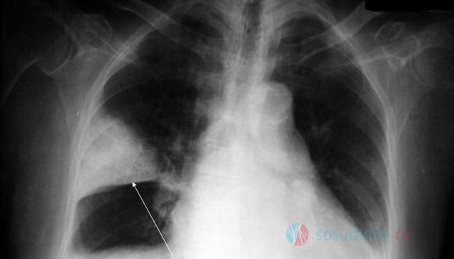 Каковы признаки инфаркта легкого?