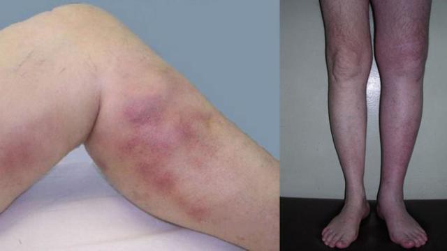 Причины тромбоза сосудов, и чем опасен оторвавшийся тромб?
