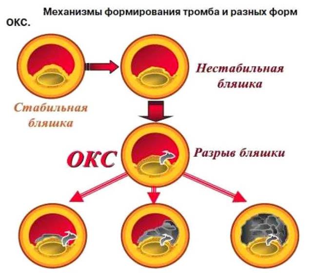 Неотложная помощь и лечение острой коронарной недостаточности