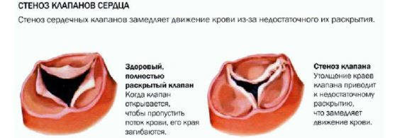 Лечение и профилактика заболеваний правого предсердия