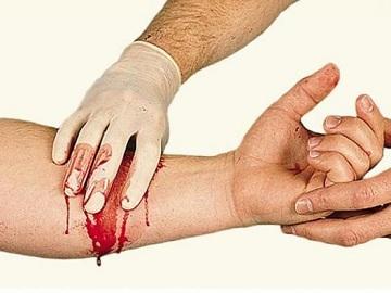 Признаки венозного кровотечения и неотложная помощь