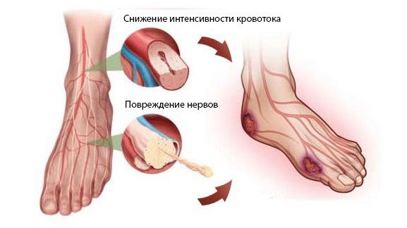 Патогенез и методы лечения диабетической ангиопатии