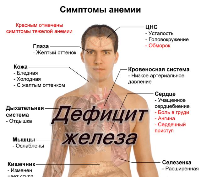 Причины возникновения и основные компоненты терапии анемии