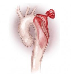 Формы, диагностика и лечение расслоения аорты