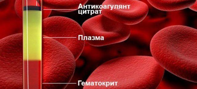 О чем говорит показатель гематокрит?