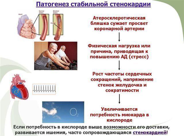 Классификация ИБС по международной классификации заболеваний