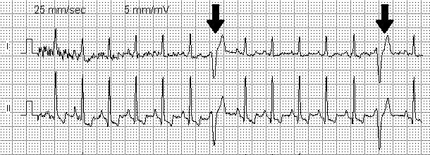 Причины, симптомы и лечение асистолии желудочков сердца