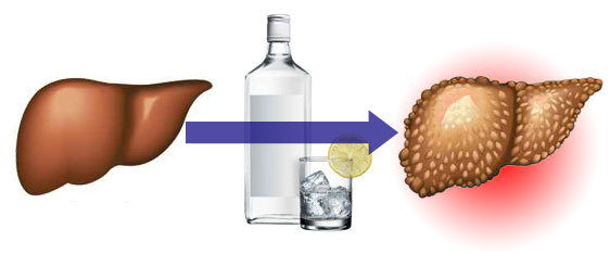 Влияние различных видов алкоголя на уровень холестерина
