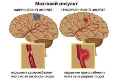 Профилактические мероприятия от инсультов