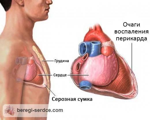 ab74679cd094799a9aa1b1c6b0013710 - Causes et symptômes du développement du traitement et du pronostic de la péricardite fibrineuse