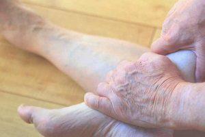 В чем причины развития и опасность венозной недостаточности ног?