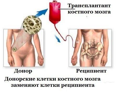 Диагностика и методы лечения острых миелобластных лейкозов