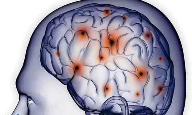 Какое заболевание называют лакунарным инсультом?