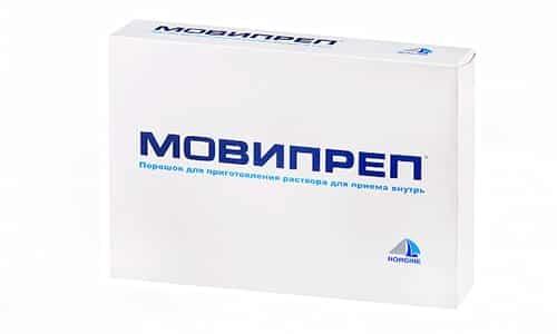 В чем разница между Фортрансом и Мовипрепом?
