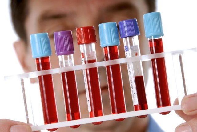 Пониженные тромбоциты в крови при беременности