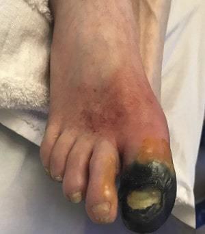Симптомы и лечение болезни Бюргера