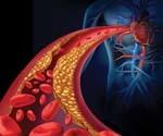 Как диагностировать и чем лечить стеноз артерий?