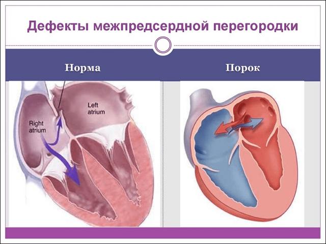 Диагностика, лечение и осложнения ДМПП