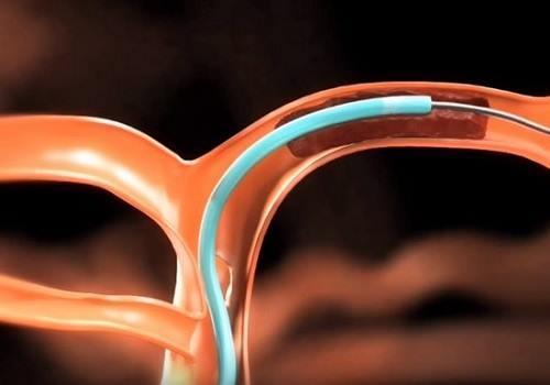 Тромбэктомия геморроидального узла