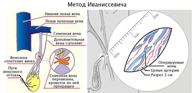 Чем опасен варикоз яичек для здоровья мужчин?