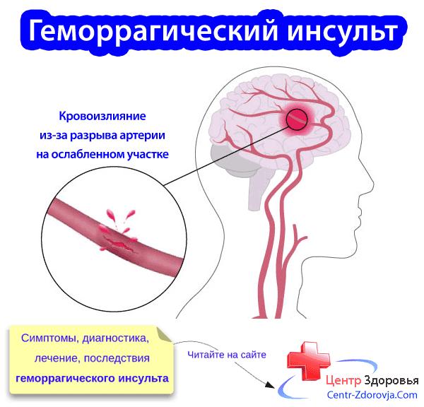 Малышева о геморрагическом инсульте