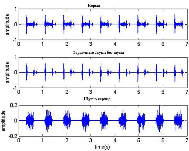 Причины, диагностика и методы лечения шумов в сердце