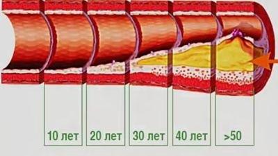 Верные и надежные способы выведения холестерина из организма