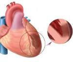 Диагностика и лечение трансмурального инфаркта миокарда