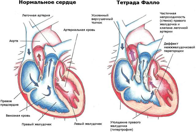 Симптомы, диагностика и прогноз при гипертрофии правого желудочка