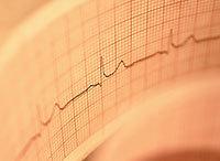 Группы риска, диагностика и лечение аритмии сердечной мышцы